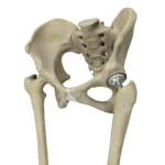 TOTAL HIP JOINT REPLACEMENT
